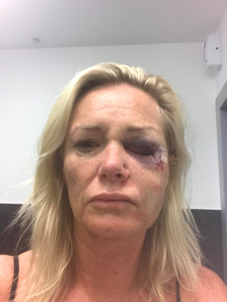This is a picture of Karen Sadler a women king hit in Ibiza after a Tinder date.